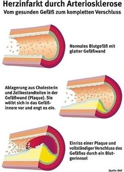 Diabetes und herzinfarkt