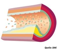 Arteriosklerose – Diabetes mellitus | diabetes.moglebaum.com